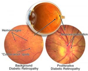 diabetična retinopatia
