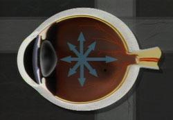 Pogled na sliko pri glavkomu z odprtim zakotjem